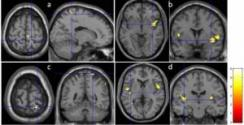 Acupuncture Changes in Brain